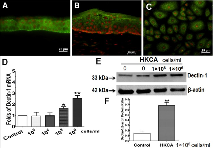Dectin-1 expression in corneal epithelial tissue and primary cultured HCECs. Representative images showed immunofluorescent staining of dectin-1 on human corneal (A) and limbal tissue (B), as well as in HCECs (C). D. Dose-dependent stimulation of dectin-1 mRNA in HCECs by HKCA for 4 hours. E. Total protein of HCECs treated for 48 hours was extracted with RIPA buffer for western blot with dectin-1 or <t>β-actin</t> antibody. F. Quantitative ratio of the dectin-1/β-actin protein, evaluated by western blotting, in HCECs with or without exposure to 10 6 cell/ml of HKCA. Propidium iodide (PI) was used as nuclear counterstaining (red color). Magnification: 400Х (bar = 25μm). Data are presented as mean ± SD, n = 5; * p