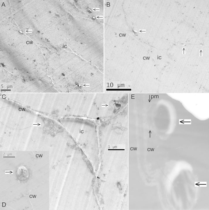 Transmission electron microscopy on tissue sections of cv. Grand Naine specifically stained for bacteria showing bacterial cells (indicated by an arrow) just inside the cell wall (cw) adjoining the plasma membrane captured at ×1400 (A), ×1200 (B), ×13 000 (C) or ×4800 (D) with a Tecnai™ G2 Spirit BioTWIN TEM, or at ×14 000 (E) using a JEOL 100S TEM with a further ×2 magnification in Adobe Photoshop 7.0. Intercellular space (ic) is obvious in (A), (B) and (C), and the plasma membrane (pm) envelope originating from the cell wall is indicated by the thin black arrow marked in 'E'.