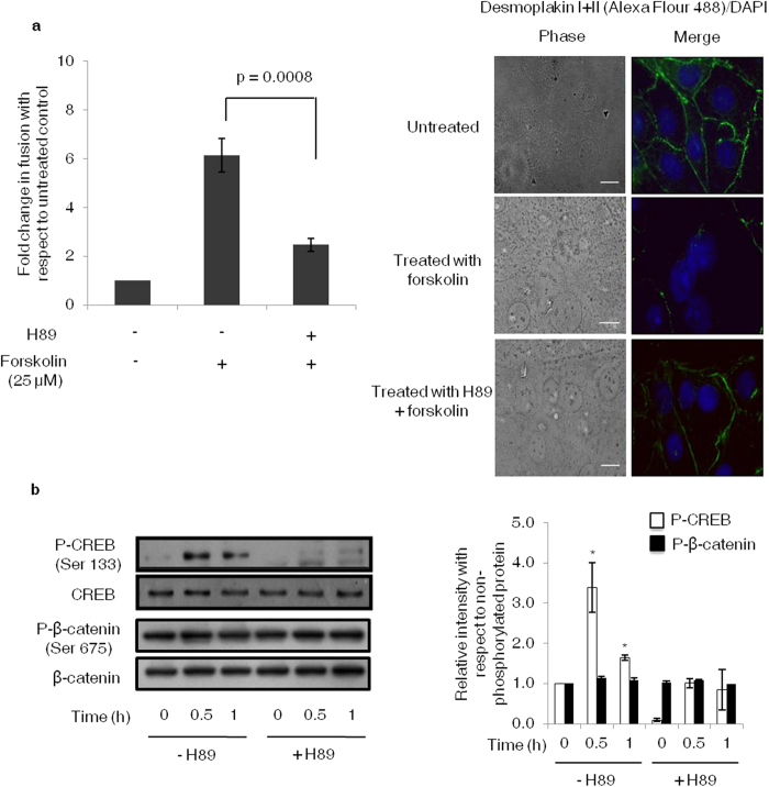 Effect of PKA inhibitor on BeWo cell fusion and expression profile of P-CREB and P-β-catenin (Ser675). BeWo cells were treated with H89 (10 μM) 1 h prior to forskolin (25 μM) treatment for varying time points using appropriate controls. Panel ( a ) represents fusion analysis carried out by desmoplakin staining at 48 h. Data is represented as fold change in fusion as compared with untreated control. Values are expressed as mean ± s.e.m. of three independent experiments. Representative desmoplakin I + II staining profile has also been shown. Scale bar represents 20 μm. Panel ( b ) shows representative Western blot and densitometric plot wherein band intensities normalized with their respective non-phosphorylated protein. The cropped blots were run under the same experimental conditions and the full length blots can be viewed in Supplementary Fig. S15 online . The data is expressed as fold change with respect to 0 h control and represents mean ± s.e.m. of three independent experiments. Representative blots for the same are also shown. *p
