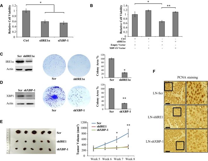 IRE1α and XBP-1 are proliferative factors in PCa cells both in vitro and in vivo A Knockdown of IRE1α or XBP-1 leads to a decrease in cell survival. LNCaP cells were transfected with siRNA targeting either IRE1α or XBP-1 (5 nM) and starved in 2% CT-FCS medium for 3 days before cell viability was measured using the CCK-8 assay. The graph is representative of one experiment in triplicate and was repeated three times with similar results. Error bars represent SD with * P = 6.6 × 10 −5 and 4.5 × 10 −5 for comparison between Ctrl and siRNA against IRE1α and XBP-1, respectively, using paired Student's t -test. B XBP-1 rescues the growth defect of siIRE1α-transfected LNCaP cells. LNCaP cells were transfected with 5 nM of indicated siRNA using Lipofectamine RNAiMax reagent. One day after siRNA transfection, the cells were transfected with either vector control (Empty) or Flag-XBP-1S (XBP-1S). Three days after transfection, cells were harvested for Western analysis or cultured for three more days before being applied to cell proliferation assay using the CCK-8 reagent. The data are representative of two experiments in triplicate. Error bars represent SE. * P = 0.02, ** P = 8.54 × 10 −7 using paired Student's t -test. C, D IRE1α and XBP-1 knockdown inhibits clonogenic capacity of LNCaP cells. Control LN-Scr (Scr), LN-shIRE1 (shIRE1), or LN-shXBP1 (shXBP-1) cells were cultured for 3 weeks. The colonies formed were stained with crystal violet and photographed. The extent of IRE1α and XBP-1 knockdown was determined by Western blot analysis. The area covered by colonies was quantified using the Gene Tools software (SynGene). The data are representative of three experiments in triplicate. Error bars represent SEM. * P = 4.38 × 10 −7 and ** P = 3.39 × 10 −20 using paired Student's t -test. E Growth analysis of xenografted LNCaP tumors in nude mice. LNCaP cells expressing shRNA against IRE1α (LN-shIRE1), XBP1 (LN-shXBP-1), or control shRNA (LN-Scr) were subcutaneously implanted into