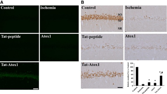 Effect of transduced of Tat-Atox1 protein on animal brain. Transduction of Tat-Atox1 protein into brain (A). Animals were treated with single i.p. injection of Tat-Atox1 protein and killed after 6 hrs. Transduction of Tat-Atox1 protein into the CA1 region was determined by immunohistochemistry with a rabbit anti-polyhistidine antibody and FITC-conjugated anti-rabbit IgG. Immunohistochemistry for NeuN in the hippocampal CA1 region (B). Control, ischaemia, Tat peptide, Atox1 protein and Tat-Atox1 protein-treated groups 4 days after ischaemia-reperfusion. SP, stratum pyramidale; SO, stratum oriens; SR, stratum radiatum; bar = 50 μm. The relative number of NeuN-immunoreactive neurons versus control group per section in all the groups ( n = 5 per group; * P
