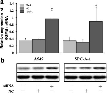 siRNA of lncRNA RGMB-AS1 promoted the expression of RGMB in A549 and SPC-A-1 cells. a Cells were transfected with siRNA of lncRNA RGMB-AS1 and NC. RGMB mRNA level was detected by qRT-PCR assay. RGMB mRNA expression was upregulated in A549 and SPC-A-1 cells after transfection with siRNA of lncRNA RGMB-AS1 and NC respectively (* P