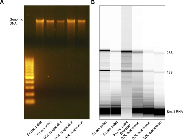 Gel electrophoresis of DNA and RNA samples . Agarose gel electrophoresis of intact genomic DNA from the indicated ductal lavage samples ( A ). Lane 1 indicates separation of 100-bp markers. Bioanalyzer gel electrophoresis of total RNA from the indicated ductal lavage samples ( B ).