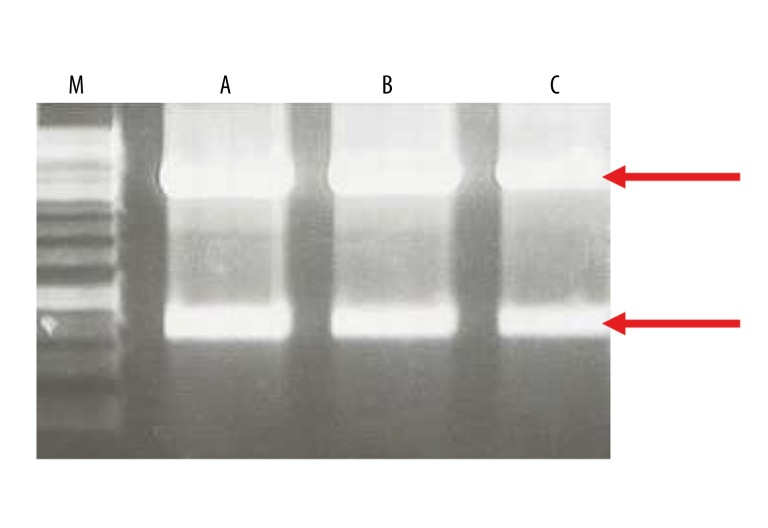 Control digestions of recombinant plasmid DNA using HindIII (Fermentas) enzyme. (A) pIL253:PptcB:MOG35-55, (B) pIL253:PptcB:MBP85-97, (C) pIL253:PptcB:PLP139-151. Expected DNA fragments after restriction analysis for correct constructs: 3897 bp, 845 bp (marked by red arrows), 1kb DNA ladder (M) 1kb DNA Ladder (Fermentas) used as DNA size reference marker.