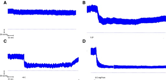 Arterial blood pressure traces from four different animals during jejunal perfusions with 154 mmol L −1 choline chloride and EIPA showing: (A) Control recording without I.V. infusion. (B) Slow infusion of 50 μ g VIP I.V. (VIP). (C) Slow infusion of 300 μ g acetyl- β -methylcholine I.V. (MC). (D) I.V. injection of 0.5 mg Phentolamine (Phen). The dashed horizontal line denotes 0 mmHg. The disturbance in trace D was caused by flushing of the arterial cannula.