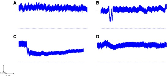 Arterial blood pressure traces from a sequence of procedures in the same animal during jejunal perfusions with 154 mmol L −1 choline chloride and EIPA: (A) Control recording without I.V. infusion with an absorption rate of −8.8 μ L cm −1 h −1 at a DBP of 118 mmHg. (B) Slow coinfusion of 50 μ g VIP I.V. and 3 μ g AVP I.V. with a secretion rate of +17.8 μ L cm −1 h −1 at a DBP of 112 mmHg. (C) Slow infusion of 50 μ g VIP I.V. with secretion rate of +26.0 μ L cm −1 h −1 at a DBP of 62 mmHg. D. Control recording without I.V. infusion with an absorption rate of −5.0 μ L cm −1 h −1 at a DBP of 104 mmHg. In B, the VIP infusion caused an initial dip in blood pressure which was restored to normal with the commencement of AVP infusion. In C, the marked fall in blood pressure marks the start of VIP infusion. The dashed horizontal line denotes 0 mmHg.