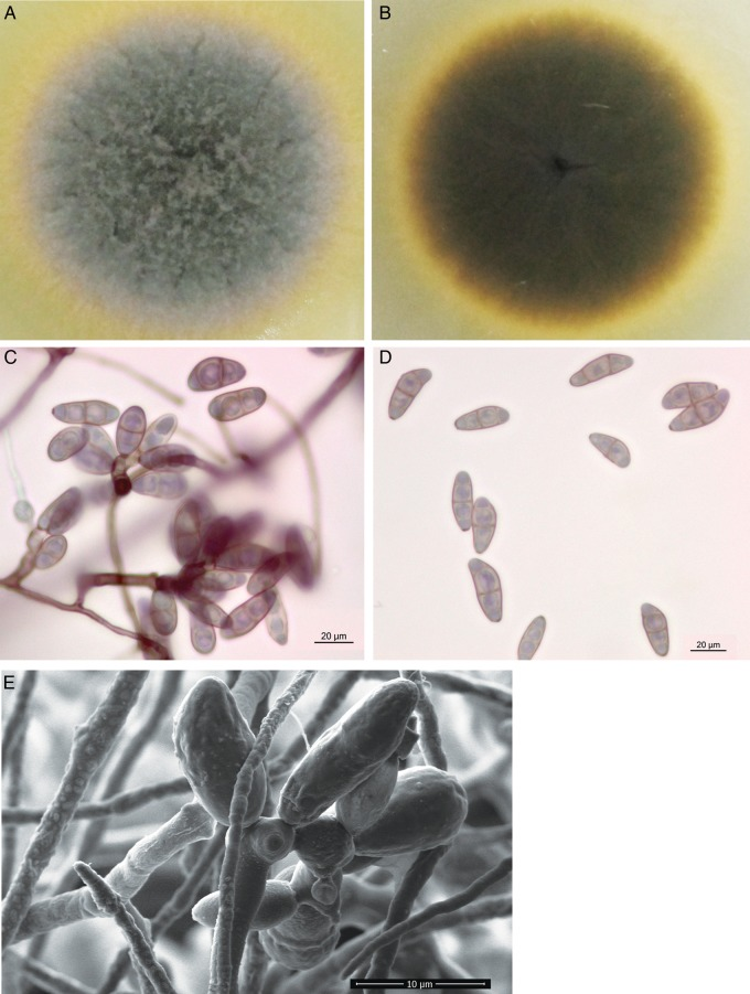 Colonial characteristic and microscopic morphology of Bipolaris papendorfii UM 226. The surface (A) and reverse (B) colony morphology of B. papendorfii UM 226 after being cultured for 7 days. Light micrograph showing (C) typical zig-zag conidiophore with several conidia and (D) conidia with three pseudoseptates (×400 magnification, bars 20 µm). Scanning electron micrograph showing (E) zig-zag conidiophores with verruculose walled conidia (×3,065 magnification, bars 10 µm). This figure is available in black and white in print and in colour at DNA Research online.