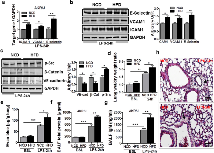Obesity impairs endothelial junction and leads to vascular injury. ( a ) Transcript levels for ICAM-1, VCAM-1 and E-selectin in the lungs of lean and obese mice at 24 h after LPS administration (n = 4, *p