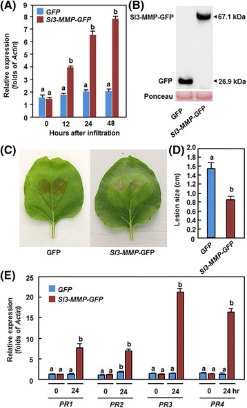 Transient expression of Sl3-MMP in N. benthamiana conferred an increased resistance to B. cinerea . a Expression of Sl3-MMP . Agrobacteria carrying pFGC-Sl3-MMP or pFGC-eGFP were infiltrated into leaves of N. benthamiana and expression of Sl3-MMP was analyzed by qRT-PCR. Relative expression levels were calculated by comparing with the corresponding values at 0 h (as a control) after infiltration. b Immunoblot analysis of Sl3-MMP-GFP fusion proteins in N. benthamiana leaves at 48 h after agroinfiltration. A GFP-specific antibody was used for detection of GFP-fusion protein. Equal loading of total proteins was examined by Ponceau staining. c and d Disease symptom and lesion size. e Expression of defense-related genes. Opposite part of the leaves infiltrated with Sl3-MMP - GFP or pFGC-eGFP was inoculated by dropping spore suspension (2 × 10 5 spores/mL) of B. cinerea and lesion sizes were measured at 5 days after inoculation. Data presented in d are the means ± SD from a minimum of 60 lesions. Data presented in a and e are the means ± SD from three independent experiments and different letters above the columns indicate significant differences at p