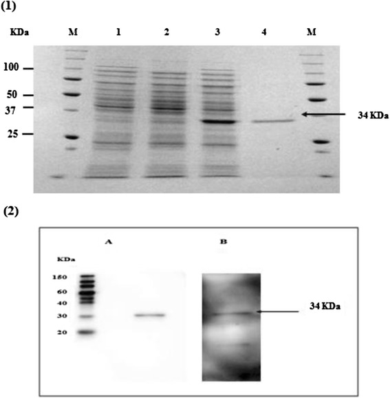 SDS-PAGE and WB Analysis of USMTOXO1 expressions in <t>BL21</t> <t>pLysS</t> (DE3), 1 Coomassie blue stained; Lane M : molecular weight marker, Lane 1 : lysate of IPTG-induced E.coli containing vector without insert, Lane 2 : lysate of non-induced E.coli containing vector with insert, Lane 3 : lysate of IPTG-induced E.coli containing vector with insert, Lane 4 : purified USMTOXO1 synthetic protein 2 Western-blot analysis of purified USM.TOXO1; detected by ( A ) anti-His antibody ( B ) human sera