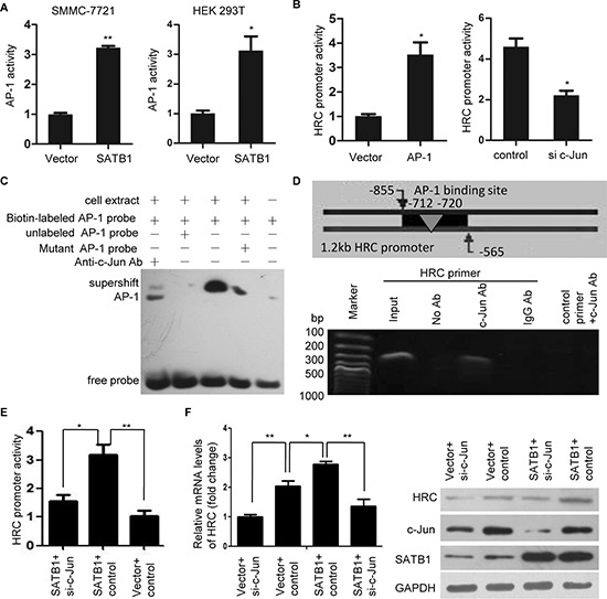 AP-1 is critical for SATB1-mediated HRC expression (A) Luciferase activity assay showed that SATB1 significantly increased AP-1 activity in SMMC-7721 and HEK 293T cells. (B) Overexpression of c-Jun enhanced while knockdown of c-Jun suppressed HRC promoter activity. Data are represented as the mean ± SD. (C) EMSA and (D) ChIP assay showed a direct binding of AP-1 to the HRC promoter. (C) The shift bands showed AP-1 combined with HRC promoter and this binding activity could be blocked by unlabeled AP-1 probe but mutant AP-1 probe. Supershift band showed c-Jun antibody blocked the mobility of the bands. (D) PCR showed HRC promoter could be detected in <t>anti-c-Jun</t> antibody-immunoprecipited candidates, but not in <t>anti-IgG</t> antibody-immunoprecipited candidates. (E) and (F) The effect of silencing endogenous c-Jun on SATB1-induced HRC promoter activation (E) and expression (F) Knockdown of c-Jun significantly abolished SATB1-induced HRC promoter activation and expression.* P