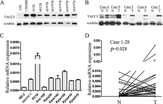 TACC3 expression is frequently upregulated in ESCC cell lines and esophageal tissue TACC3 protein and mRNA levels in a panel of ESCC cell lines including Eca-109, EC18, HKESC1, KYSE30, KYSE140, KYSE150, KYSE410, and KYSE510, compared as the immortalized normal human esophageal epithelial cell, NE3 (A, C) and in 28 pairs of matched ESCC and non-tumor tissues (B, D) . mRNA levels are presented as means ± SD and normalizing to the housekeeping gene β-actin in qRT-PCR. N, matched noncancerous tissue; T, tumor tissue; ESCC, esophageal squamous cell cancer.