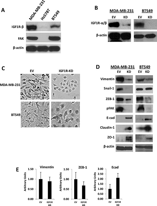 Stable silencing of IGF1R confers epithelial-like phenotypes in mesenchymal TNBC cells (A) Endogenous expression of IGF1R-β and total FAK analyzed via Western blot analysis in a panel of mesenchymal human TNBC cells. (B) Western blot confirmation of stable lentiviral knockdown of IGF1R-α/β (IGF1R-KD) in MDA-MB-231 and BT549 TNBC cells. β-actin was used as a loading control. (C) Morphological changes in MDA-MB-231 and BT549 IGF1R-KD cells compared to EV control cells four to six passages post-lentiviral infections; brightfield magnification x20. (D) Western blot analyses of mesenchymal markers (vimentin, Snail-1, ZEB-1), motility marker pFAK, and epithelial markers (E-cadherin, claudin-1, and ZO-1) in cell lines stably expressing EV control plasmid or IGF1R-KD lentiviral plasmids using specific antibodies. β-actin was used as a loading control. (E) Relative mRNA expression levels of Vimentin, ZEB-1, and E-cadherin in MDA-MB-231 EV and IGF1R-KD cell lines was detected by TaqMan quantitative RT-PCR and normalized to RPLPO. The relative amounts of transcript were described using the 2–ΔΔCt method. Data are displayed in means ± standard deviation of at least three independent experiments of each group.
