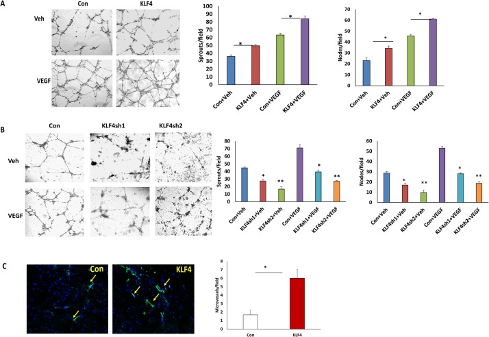 KLF4 promotes VEGF-induced tube formation and enhances angiogenesis in vivo. A.B. Tube formation assays were performed in KLF4 expressing and knockdown HRMECs, respectively. The angiogenic effect of KLF4 on VEGF induced tube formation was determined by counting nodes and sprouts of tube-like structures from at least three different fields of three independent experiments and normalized to vehicle treated control cells. Significance was compared between KLF4 expressing and control cells with or without VEGF treatment (*p