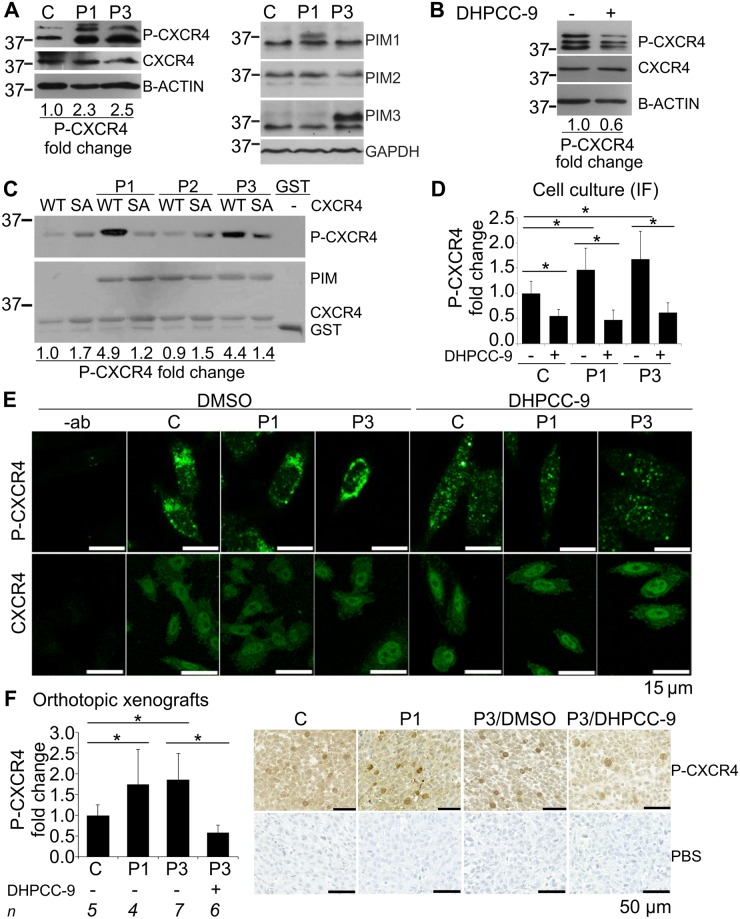 Pim-1 and Pim-3 enhance CXCR4 phosphorylation and cell surface expression in prostate cancer cells. Phosphorylation of CXCR4 at S339 as well as Pim levels were analysed by western blotting in the stable Pim-1 (P1), Pim-3 (P3) or control vector (C) overexpressing PC-3 cells or the parental PC-3 cell line treated with 0.1% DMSO or 10 μM DHPCC-9. Shown are results from one representative experiment with loading controls and molecular weight (kDa) markers (A-B). The ability of Pim family members to phosphorylate CXCR4 in vitro was analysed by incubating GST-tagged Pim-1 (P1), Pim-2 (P2) or Pim-3 (P3) proteins with GST-tagged fragments of wild-type (WT) or Ser339 > Ala (SA) mutant human CXCR4. Phosphorylated CXCR4 was detected by phospho(Ser339)-CXCR4 antibody and protein loading by Ponceau S staining. Shown are results from one representative experiment (C). Localization and signal intensity of phosphorylated versus overall CXCR4 expression was analysed by immunofluorescent (IF) staining of stably transfected cells treated with either 0.1% DMSO or 10 μM DHPCC-9. The experiment was controlled by parallel samples stained only with the secondary antibody (-ab). Stainings were repeated twice and stacks of images were taken by confocal microscopy from at least 30 cells per sample per experiment. Shown are the signal intensities of phospho-CXCR4 stainings compared to overall CXCR4 levels along with representative images from phospho-CXCR4 and CXCR4 stainings (D-E). Phosphorylation and localization of CXCR4 was also analysed by immunohistochemical staining of the paraffin-embedded tissue sections from orthopic prostate tumors. Shown is the relative increase in the amount of phospho-CXCR4-positive cells versus overall CXCR4 expression measured by whole tumor scanning. PBS instead of the primary antibody was used as a negative control. Representative images were taken to visualize the differences in phospho-CXCR4 (dark brown) stainings (F).
