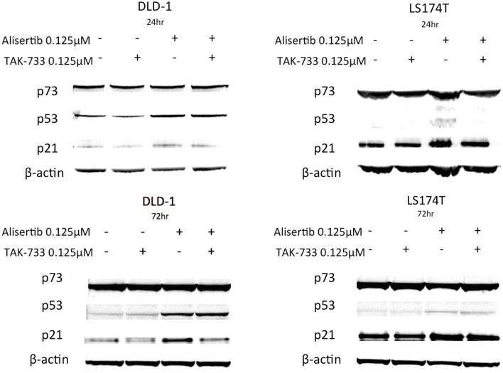 Effect of alisertib and TAK-733 alone and in combination on p53, p73, and p21 . Evaluation was performed in p53 mutant (DLD-1) and wild type (LS174T) CRC cell lines at 24 and 72 h, with a more robust increase in p53 observed at both 24 and 72 h in the p53 mutant DLD-1 cell line. An increase in p21 is demonstrated in the DLD-1 cells exposed to alisertib alone, with no change noted in the LS174T cell line.