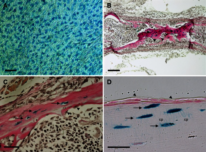 Expression of RPTPµ in bone. Calvariae ( a ), metatarsals ( b ) and tibiae ( c ) of 5-day-old neonatal and tibiae ( d ) of adult RPTPμ-knock-out/LacZ knock-in mice were stained for β-galactosidase activity using X-gal. Within the calvariae, the cellular network of osteocytes is stained blue . In neonatal metatarsals and tibiae, the osteocytes ( arrows ) show a deep blue color , while the osteoblasts ( arrowheads ) are not stained. The adult tibiae also show that the blue staining representing RPTPµ expression is only present in osteocytes ( arrows ), while lining cells ( arrowheads ) are negative. The cellular processes ( cp ) are clearly visible. Bars : a 50 µm; b 100 µm; c , d 25 µm