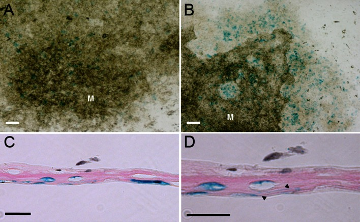 Osteocytes can be generated in vitro. Bone marrow stromal cells (MSC) of RPTPμ-knock-out/LacZ knock-in mice were cultured for 21 days under osteogenic conditions and stained for β-galactosidase activity using X-gal. Within the cultures, blue -stained cells can be observed ( a ). The number of blue -stained cells is markedly increased when BMPs were added to the medium ( b ). Close observation shows that within the mineralized (M) nodules osteocytes are present, although the number of blue -stained cells is higher in the non-mineralized areas of the nodules. Histological analysis of the MSC cultures shows that only cells that are embedded within matrix show β-galactosidase activity ( c ). Some of these cells show cellular processes, which is very characteristic for osteocytes, which can be observed in a larger magnification of the same area ( arrowheads d ). Bars a , b 250 µm; c , d 25 µm