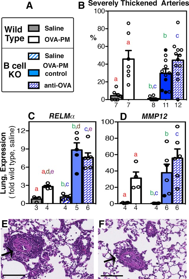 Severe thickening of pulmonary arteries and expression of pro-remodeling genes in the lungs. Groups of wild type or B cell KO mice challenged with saline or OVA-PM were analyzed. Groups of OVA-PM challenged B cell KO mice were either controls [injected with control antibody (open circles) or given no injections (filled circles)] or injected with anti-OVA IgG1 antibody. (A) Legend. (B-D) Bar graphs show mean ± SEM and individual data for (B) severe arterial thickening by histological analysis and for expression of pro-remodeling genes ( C RELMα, D MMP12) in the lungs. Gene expression in the lungs is shown as fold-increase over the means of the wild type saline group. Pairs of letters above the bars indicate the pairs of groups that showed significant differences (p