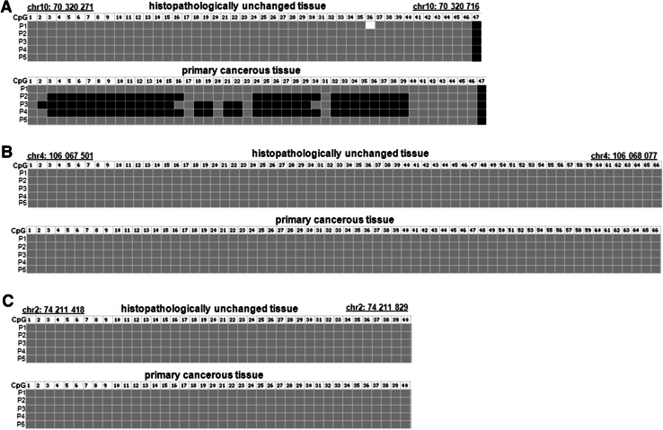 DNA methylation assessment of TET1 , TET2 and TET3 gene regulatory region by bisulfite sequencing in tissue samples from patients with CRC. Primary cancerous and histopathologically unchanged tissues from the same patients with CRC (P1–P5) were used for genomic DNA isolation followed by bisulfite conversion of cytosine to uracil. The TET1, TET2 and TET3 regions containing 47, 64 and 40 CpG dinucleotides, respectively, were then amplified by a pair of primers complementary to the bisulfite-DNA modified sequence. The PCR products were purified with subsequent cloning into a plasmid vector. Plasmid DNA isolated from five positive bacterial clones was used for commercial sequencing. The results of bisulfite sequencing were assessed and presented using BiQ analyzer software and BDPC web server. Black , gray and white boxes represent methylated, unmethylated or undetermined CpG dinucleotide, respectively
