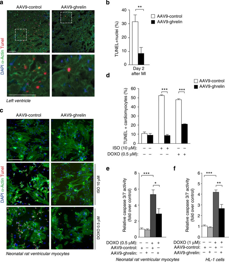 AAV9-ghrelin exerts anti-apoptotic effect on cardiomyocytes exposed to toxic or ischaemic damage in vitro and in vivo . ( a ) TUNEL staining of the infarct border zone in hearts injected with AAV9-control or AAV9-ghrelin 2 days after MI. Nuclei are stained blue with 4′-6-diamidino-2-phenylindole (DAPI) and cardiomyocytes green by an antibody against α-actinin. Red nuclei indicate apoptotic cells. Scale bar, 100 μm. ( b ) Quantification of TUNEL-positive nuclei (% of total) in the peri-infarctual region of AAV9-control and AAV9-ghrelin-treated mice ( n =8 per group). ( c ) Rat neonatal cardiomyocytes, transduced with AAV9-control or AAV9-ghrelin (MOI=5 × 10 4 vg per cell, transduction efficiency > 40%) were either left untreated or treated with (−)-Isoproterenol hydrochloride 10 μM (ISO) or doxorubicin hydrochloride 0.5 μM (DOXO); after 24 or 48 h, respectively, cells were fixed and stained with TUNEL assay. Nuclei are stained blue with DAPI and cardiomyocytes green by an antibody against α-actinin. Red nuclei indicate apoptotic cells. Scale bar, 100 μm. ( d ) Quantification of cardiomyocytes TUNEL-positive nuclei (% of total) after transduction with AAV9-control or AAV9-ghrelin and (−)-Isoproterenol or doxorubicin treatment. Quantification was performed using the ImaJ software ( n =4). ( e , f ) Caspase 3/7 activation analysis in rat neonatal cardiomyocytes ( e ) and HL-1 cells ( f ) transduced with AAV9-ghrelin or AAV9-control and treated with doxorubicin 0.5 μM and 1 μM, respectively, for 20 h ( n =12). All values are mean±s.e.m. Pairwise comparison was performed with the Student's t -test ( b , d ); one-way analysis of variance and Bonferroni/Dunn's post hoc test were used to compare multiple groups ( e , f ). ** P