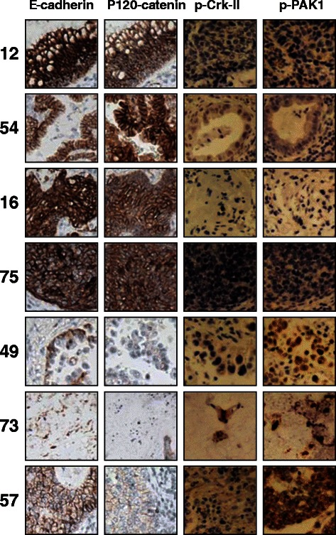 PAK1 activation and Crk phosphorylation are correlated with loss of E-cadherin and p120-catenin in NSCLC specimens. Photomicrographs demonstrating immunohistochemical staining of NSCLC clinical specimens. Samples 12, 54, 16 and 75 harbor high E-cadherin/p120-catenin while expressing no detectable level of p-PAK1(Thr423) and p-Crk-II(Ser41). On the other hand, samples 49, 73 and 57 with detectable p-PAK1(Thr423) and p-Crk-II(Ser41) show very low levels of E-cadherin/p120-catenin.