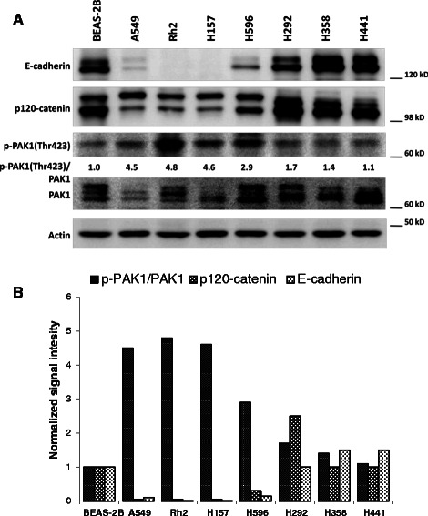PAK1 activation is inversely correlated with E-cadherin and p120-catenin expression in NSCLC cells. A -Western blots demonstrating E-cadherin, p120-catenin, PAK1 and p-PAK1(Thr423) expression in a panel of NSCLC cells as well as immortalized normal human respiratory epithelial cells (BEAS-2B). B -Bar chart demonstrating signal intensity of p-PAK1/PAK1, p120-catenin and E-cadherin normalized to the value of BEAS-2B cells.