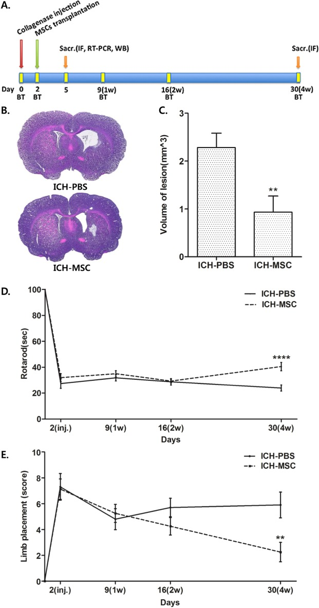 Transplantation of hUCB-MSCs reduces lesion volume and improves the behavioral recovery of ICH rats. (A) Schematic timeline of the experimental procedures. MSCs indicates mesenchymal stem cells; Sacr, sacrifice; IF, immunofluorescence staining; WB, western blot; and BT, behavior test. (B) H E staining of coronal sections for characterization of unilateral brain injury at 30 days after ICH. (C) The volume of lesion in the hUCB-MSCs-treated rats (n=8) was significantly smaller than in the controls (n=10) at 4 weeks after transplantation. ** p