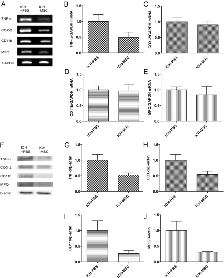 RT-PCR and western blot analysis of inflammatory factors. The mRNA and protein levels were detected in whole brain tissue of ICH rats at 3 days after transplantation. (A) mRNA levels of inflammatory factors (TNF-α, COX-2, CD11b, and MPO) by RT-PCR. (B~E) Quantification of the mRNA expression of inflammatory factors in the hUCB-MSCs-treated group compared with the controls. (F) Representative western blots of the four inflammatory factors (G~J). Quantification (protein expression) of inflammatory factors in the hUCB-MSCs-treated group compared with the controls. mRNA and protein levels of inflammatory factors were lower in the hUCB-MSCs-treated group than in the controls (not significant). Densitometric analysis was performed using the Image J software by normalizing to GAPDH for RT-PCR and β-actin for western blot as the loading control; n=3 per group.