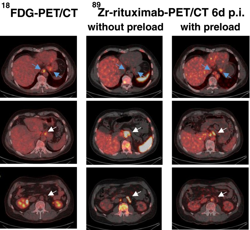 18 F-FDG PET/CT and 89 Zr-rituximab immuno-PET/CT images in patient 2 obtained 6 days after injection with and without a preload of unlabelled rituximab show lower tracer uptake in involved lymph nodes with the preload ( white arrows ), but higher uptake in less accessible visceral lesions (oesophagus and stomach; blue arrows ) resulting in better tumour targeting