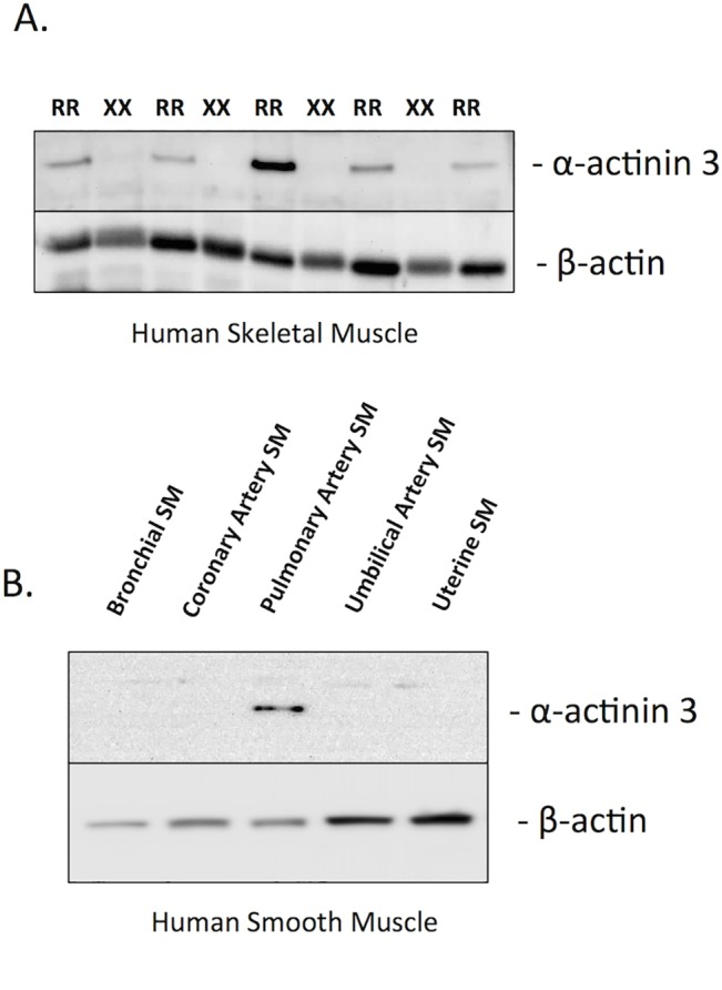 The expression of alpha-actinin-3 in human skeletal muscle and pulmonary artery smooth muscle. Shown are A) A rabbit polyclonal alpha-actinin 3 antibody probed against skeletal muscle samples from ACTN3 RR577 and 577XX individuals from the STRRIDE Study [ 30 ]. B ) This same antibody probed against human smooth muscle (SM) cell panel. Each lane contains 50 ug of protein extract, which were stripped and reprobed with a beta-actin antibody as a loading control.