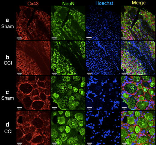 Immunohistochemical staining of Cx43 in DRG at lower ( a , b , scale bar = 100 µm) and higher ( c , d , scale bar = 20 µm) magnification. Cx43 is located at the plasma membrane of large and small diameter neurons in Sham ( a , c ) and CCI (12 days) rats ( b , d ). NeuN neuronal cell marker, Hoechst nuclear counterstain.