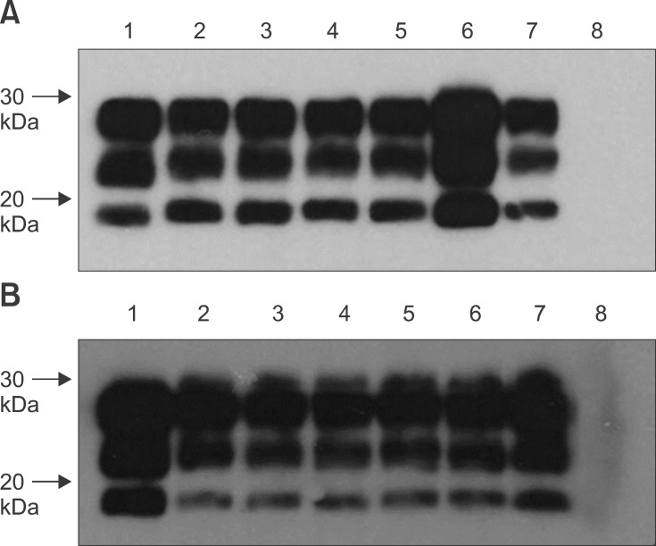 Representative Western immunoblots for detecting PrP res in Tg338 mice inoculated with PBMCs and B lymphocytes. (A) PrP res -specific bands were detected for the brain homogenates of preclinical scrapie donor sheep 4125 (lane 1) along with brain homogenates of Tg338 mice inoculated with PBMCs (lanes 2 and 3), CD72 + B lymphocytes (lanes 4 and 5), and CD21 + B lymphocytes (lanes 6 and 7). These bands were not observed for the uninoculated control mouse (lane 8). (B) PrP res bands were also detected for the brain homogenates of clinical scrapie donor sheep 4124 (lane 1) as well as spleen homogenates of Tg338 mice inoculated with sIgM + B lymphocytes (lanes 2~4) and CD21 + B lymphocytes (lanes 5~7). These bands were not observed for the uninoculated control mouse (lane 8). mAb F99/97.6.1 (2.5 µg/mL) was used to detect PrP res .