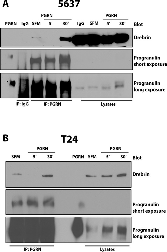 Progranulin coprecipitates with drebrin in 5637 and T24 urothelial cancer cells (A) Serum-starved (SFM) 5637 and (B) T24 cells were stimulated with recombinant progranulin (80 nM) for 5 and 30 min (5′ and 30′). progranulin interaction with drebrin was assesses by coimmmunoprecipitation experiments. 3 mg of lysates from 5637 (A) and T24 (B) cells were immunoprecipitated with anti-progranulin polyclonal antibodies. Unrelated IgG (IgG) was used as control (A) Drebrin was detected by immunoblot using anti-drebrin monoclonal antibodies. Blots are representative of two independent experiments.
