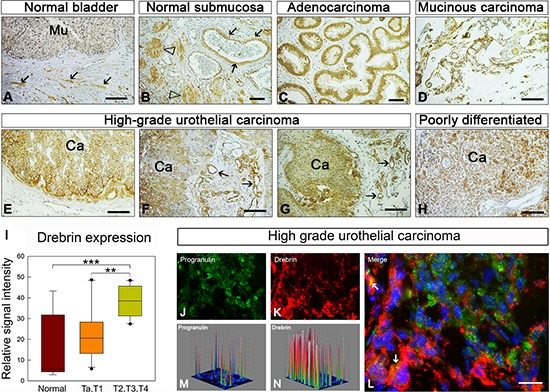 Drebrin is upregulated in bladder cancer tissues (A–H) , Panels of light micrographs depicting the distribution of immunoreactive drebrin in normal bladder (A and B) and various types of urinary cancers as indicated (C–H) Notice that in normal bladder, drebrin is essentially not expressed in the mucosa (Mu, a) but is expressed in the submucosal blood vessels and nerves (arrows and arrowheads, respectively, panel B). Drebrin is expressed at high levels in the epithelial components of all cancers (Ca) studied and often in the tumor vasculature (arrows in panels f and g). Bars = 100 μm. (I) Quantification of the drebrin staining was done using ImageJ software. Various images of normal ( n = 9); Ta, T1 ( n = 10) and T2, T3, T4 ( n = 13) urothelial carcinoma tissues were analyzed. Briefly, the threshold of each image was adjusted in order to show only the specific staining. The representative areas of staining were then quantified and plot using SigmaPlot. (L–J) Drebrin and progranulin expression in frozen high grade urothelial carcinoma tissues was analyzed by immunofluorescence analysis. Arrows (L) indicate some areas of colocalization. Three-dimensional surface plots are indicative of progranulin (M) and drebrin (N) expression levels in the relative fluorescence images.