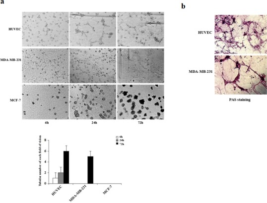 Kinetics of vascular channel formation in HUVEC, MDA-MB-231, and MCF-7 cells (a) HUVEC, MDA-MB-231, and MCF-7 cells were plated on matrigel, and images were acquired using phase-contrast microscopy at the times indicated. HUVEC cells started to form vascular channels 6 h after plating whereas MDA-MB-231 cells formed vascular channels at 24 h. Well-defined patterned networks were observed by 72 h. MCF-7 cells failed to form patterned networks. (b) Periodic Acid-Schiff (PAS) staining of HUVEC and MDA-MB-231 cells plated on matrigel for 72 h to identify secreted extracellular matrix. Pink staining identifies glycogen and related mucopolysaccharides secreted by cells to form the extracellular matrix-rich vascular channels.