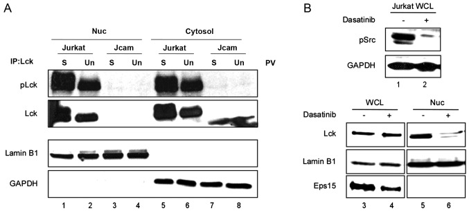Contribution of endogenous Lck kinase activity in its nuclear translocation. (A) Nuclear and cytosolic fractions were isolated from Jurkat and Jcam cells either unstimulated (Un) or stimulated with pervanadate for 5 min (S). Equal amount of proteins from each set of lysates was immunoprecipitated (IP) with an anti-Lck antibody, and then subjected to immunoblotting with an anti-phospho-Src family (Y416) antibody to visualize Lck phosphorylation (pLck). The amount of total Lck was determined by sequential blotting with the anti-Lck antibody. A fraction of the total lysates was probed for GAPDH and lamin B1 to verify fraction purity. (B) Jurkat cells were treated with dasatinib or vehicle control for 2 h. Whole cell lysates (WCL) were prepared from a fraction of the cells and analyzed by immunoblotting using antibodies specific for phospho-Y416-Src family (pSrc) and GAPDH (lanes 1 and 2). Nuclear proteins isolated from the remaining cells were subjected to immunoblotting using antibodies specific for Lck, lamin B1 and Eps15 (cytosolic marker) (lanes 5 and 6). Equal amount of whole cell lysates was also analyzed by immunoblotting using antibodies specific for Lck, lamin B1 and Eps15 (lanes 3 and 4). Lck, lymphocyte-specific protein tyrosine kinase; GAPDH, glyceraldehyde-3-phosphate dehydrogenase; Eps15, epidermal growth factor receptor substrate 15.