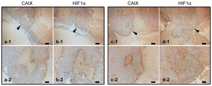 Immunohistochemistry of two representative 518A2 xenograft tumor samples stained with HIF1α and CAIX antibodies from corresponding tumor regions. Overview images of two representative melanoma tumors are shown in the top row (a-1, b-1 and c-1, d-1); staining for CAIX (a-1, a-2, c-1 and c-2) and HIF1α (b-1, b-2, d-1 and d-2) shows regions with high expression. Scale bars, 200 μm (a-1, b-1, c-1 and d-1), and 100 μm (a-2, b-2, c-2 and d-2). Arrows point to the area of magnification.