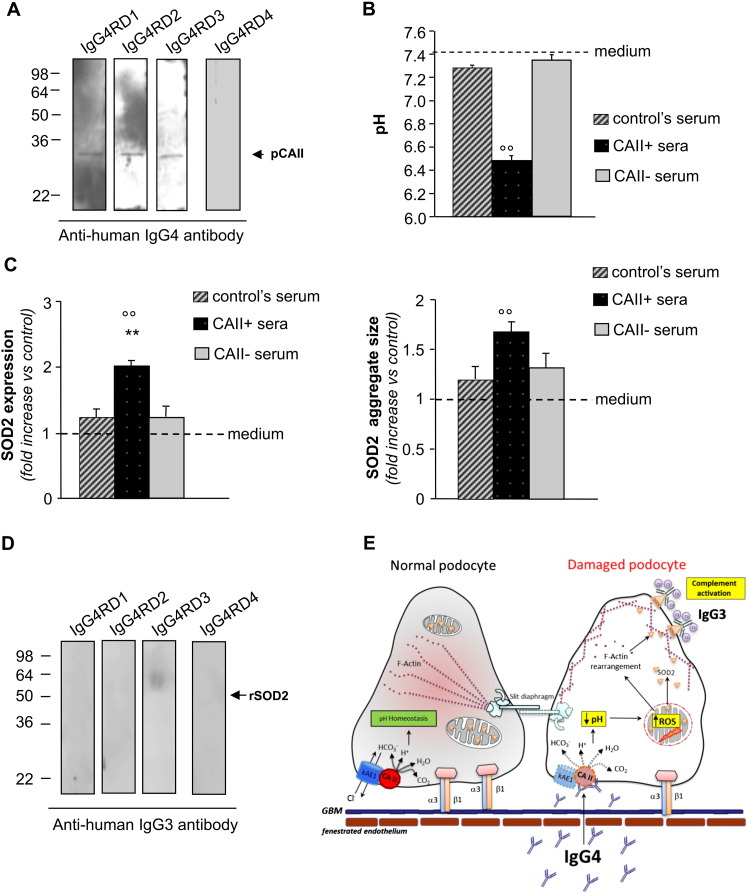Effect of IgG4 anti-CAII in sera of untreated IgG4-related disease patients. (A) Western blotting of purified CAII (pCAII, 0.6 μg). IgG-subclass specificity against CAII was evaluated using an anti-human IgG4-HRP antibody. (B) Intracellular pH detected using fluorimetric assay in podocytes exposed 6 h to IgG4 anti-CAII positive sera (CAII + sera), IgG4 anti-CAII negative serum (CAII − sera), control's serum (control's serum) or control medium (medium). °°p