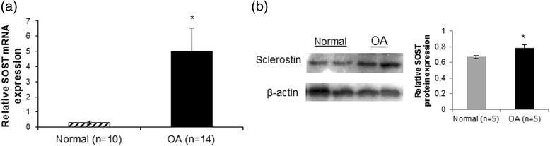 SOST mRNA and protein expression levels in normal and osteoarthritis ( OA ) chondrocytes. a Quantitative SOST mRNA expression in cultured normal (n = 10) and OA chondrocytes (n = 14). GAPDH was used for normalization of the real-time PCR data ( error bars = standard error, * p = 0.005). b Representative western blot of SOST protein expression in cultured normal and OA chondrocytes and a bar graph showing relative SOST protein expression normalized to β-actin in normal (n = 5) and OA chondrocytes (n = 5) ( error bars = standard error, * p = 0.038)