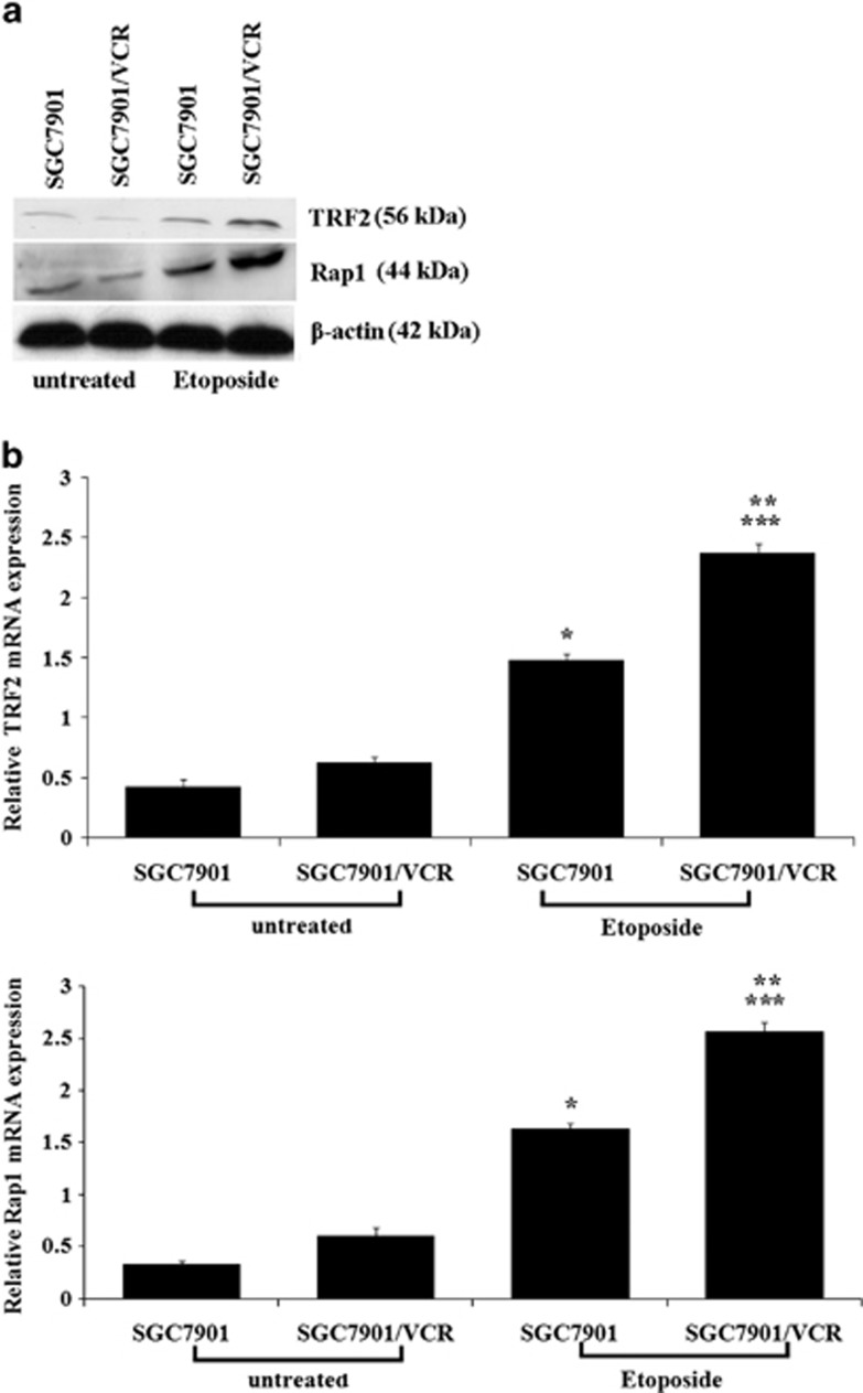 TRF2 and Rap1 upregulation induced by etoposide in gastric cancer cells. ( a ) Protein expression levels of TRF2 and Rap1 detected by western blot in SGC7901 and SGC7901/VCR after treated with 20 μg/ml of etoposide for 6 h. ( b ) Relative mRNA expression levels of TRF2 and Rap1 detected by real-time PCR analysis in SGC7901 and SGC7901/VCR after treated with 20 μg/ml of etoposide for 6 h. * P
