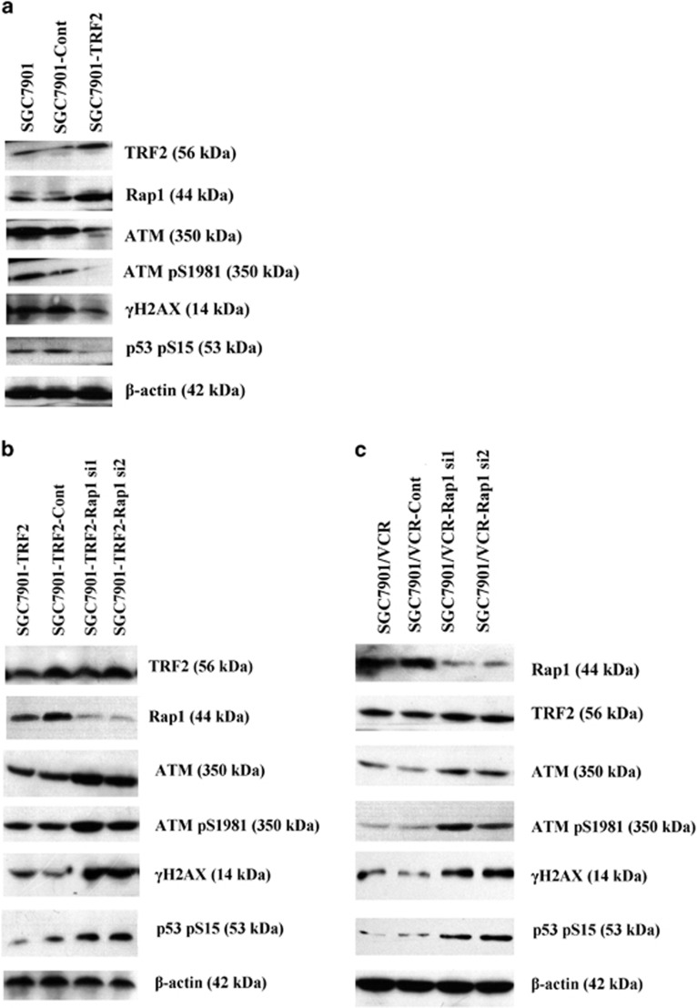 Downregulation of Rap1 eliminated the inhibition effects of TRF2 on etoposide-induced ATM activation. ( a ) TRF2 eukaryotic expression vector was transfected into SGC7901. Expression of ATM, ATM pS1981, γH2AX and p53 pS15 after treated with 20 μg/ml of etoposide for 6 h were detected by western blot. ( b ) Rap1 siRNA vector and TRF2 eukaryotic expression vector were cotransfected into SGC7901. Expression of ATM, ATM pS1981, γH2AX and p53 pS15 after treated with 20 μg/ml of etoposide for 6 h were detected by western blot. ( c ) Rap1 siRNA vector was transfected into SGC7901/VCR. Expression of TRF2, Rap1, ATM, ATM pS1981, γH2AX and p53 pS15 after treated with 20 μg/ml of etoposide for 6 h were detected by western blot.