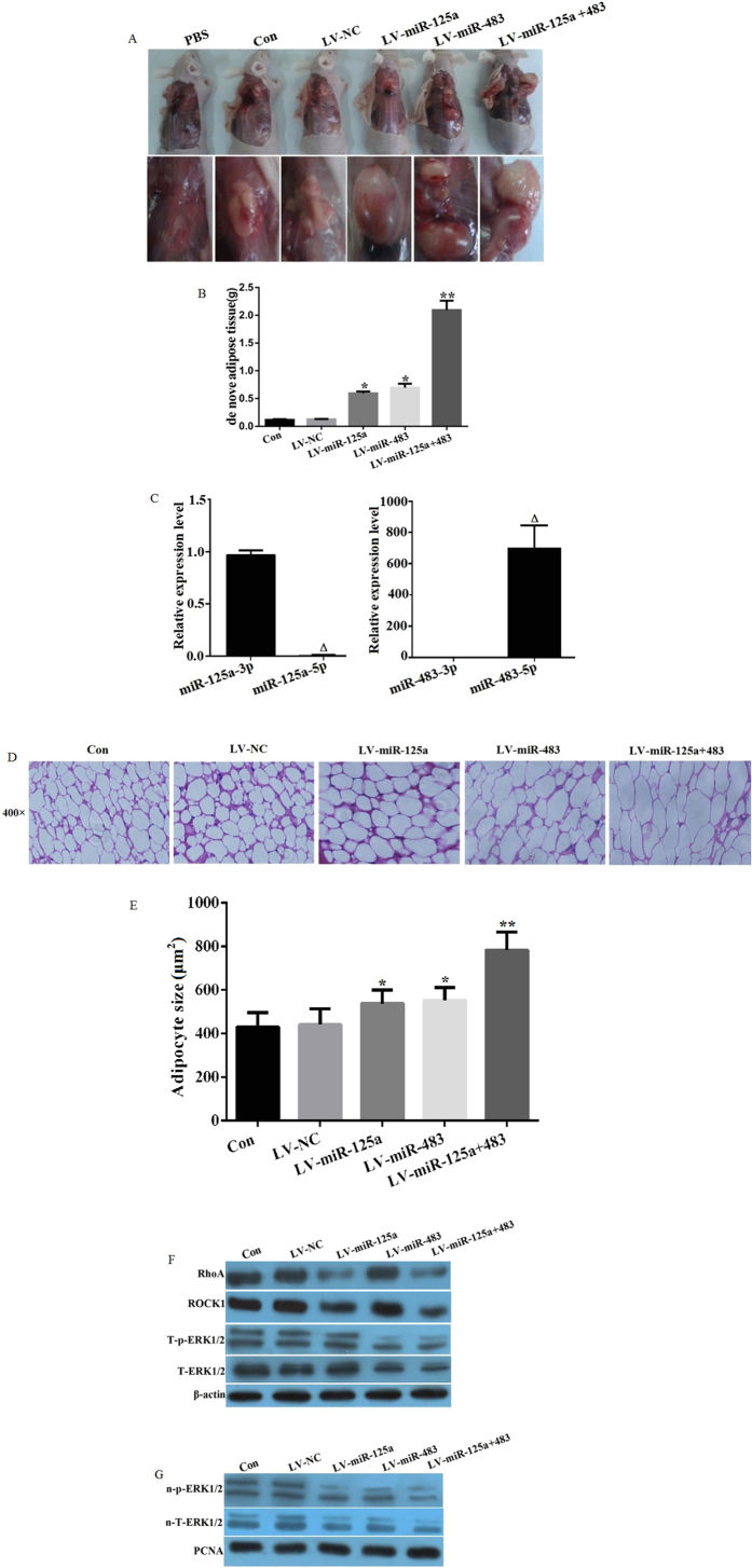 miR-125a-3p and miR-483-5p regulate RhoA/ROCK1/ERK1/2 signaling and promote mouse de novo adipogenesis. hADSCs were transfected with a lentiviral vector containing pre-miRs of miR-125a (LV-miR-125a), miR-483 (LV-miR-483), or negative control miR (LV-NC) and transplanted to the back subcutaneous tissues of nude mice with the transfected hADSCs or non-tranfected hADSC as control group (Con) or injection of PBS. After 5 weeks of self-differentiation, ( A ) De novo adipose tissue formation was observed (n = 5); ( B ) The weights of the de novo adipose tissues were measured (n = 5); ( C ) The expression levels of miR-125a-3p/5p and miR-483-3p/5p in de novo adipose tissue were detected by real-time PCR (n = 5); ( D ) The de novo adipose tissue was stained to observe the histology (n = 5); ( E ) Adipoctye size were analyzed by ImageJ software ( F ) The protein expression levels of RhoA, ROCK1, total ERK1/2 (T-EKR1/2), and phosphorylated ERK1/2 (T-p-EKR1/2) were analyzed by western blot; and ( G ) Total nuclear ERK1/2 (n-T-ERK1/2) and p-ERK1/2 (n-p-ERK1/2) were analyzed by western blot. All measurements were preformed by three independent experiments. *p