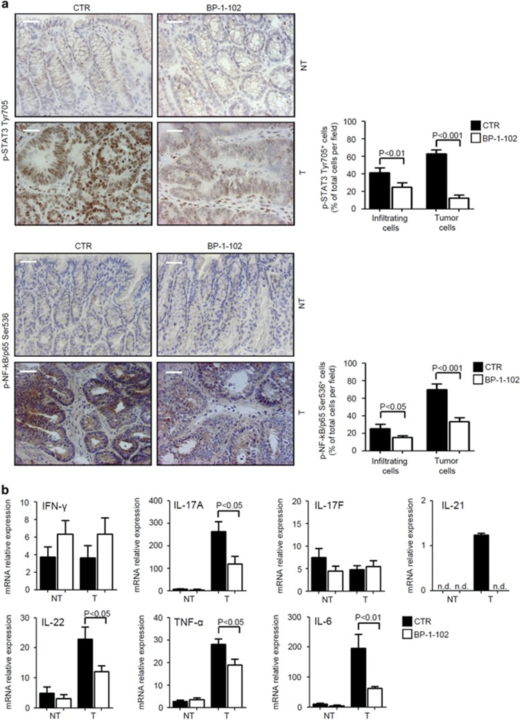 Reduced STAT3/NF-kB activation and reduced expression of IL-17A, IL-21, IL-22, TNF-α and IL-6 are seen in the colonic tumors of BP-1-102-treated Apc min/+ mice. ( a ) Representative images showing p-STAT3 Tyr705- or p-NF-kB/p65 Ser536-positive cells in colonic sections taken from the tumor areas Apc min/+ mice treated with either dimethyl sulfoxide (DMSO) (CTR) or BP-1-102 and killed on day 56. The scale bars are 20 μm. One of six representative experiments in which similar results were obtained is shown. Right insets. Quantification of p-STAT3 Tyr705- or p-NF-kB/p65 Ser536-positive infiltrating and epithelial cells in colonic sections taken from the tumor areas of Apc min/+ mice treated with either DMSO (CTR) or BP-1-102 and killed on day 56. Data are presented as mean values of positive cells per high power field (h.p.f.)±s.e.m. of three independent experiments in which two sections per group were analyzed. Differences were calculated using the two-tailed Student's t -test. NT, non-tumor area; T, tumor area. ( b ) IFN-γ, IL-17A, IL-17F, IL-21, IL-22, TNF-α- and IL-6 expression was assessed by real-time PCR in colonic tissues taken from Apc min/+ mice treated with either DMSO (CTR) or BP-1-102 and killed on day 56. Values are mean±s.e.m. of two independent experiments containing at least three mice per group. Differences were calculated using the two-tailed Student's t -test. ND, not detectable; NT, non-tumor area; T, tumor area.