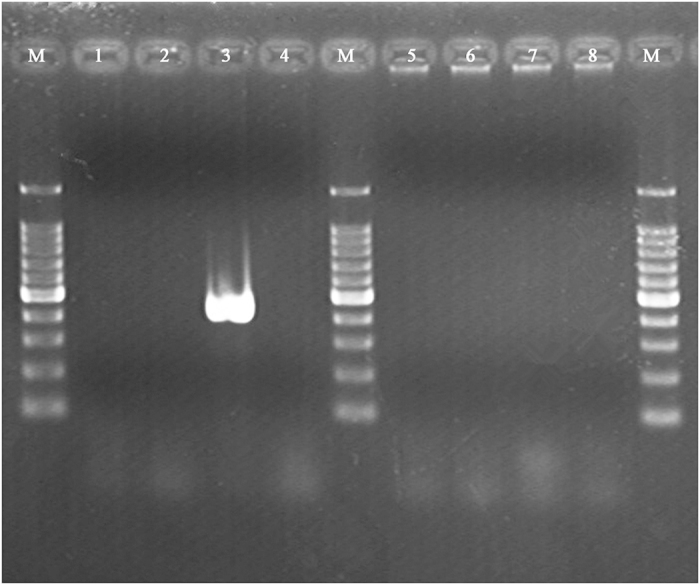 <t>PCR</t> product agarose gel electrophoresis for the identification of S. aureus ATCC25923 agr genotype. Whole- cell PCR was performed with each of the four agr specificity primers. Lines 1 to 4, PCR product using the same forward primer pan- agr and different reverse primers ( agr I, agr II, agr III, and agr IV) with S. aureus ATCC25923 genomic <t>DNA</t> as templates (439 bp for agr I, 573 bp for agr II, 406 bp for agr III, and 657 bp for agr IV); Lines 5 to 8, negative controls responsible to lines 1 to 4, respectively; Lines M, 100 bp for DNA ladder.