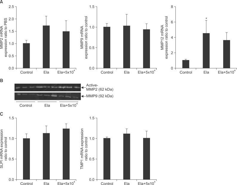 The effects on protease and anti-protease in elastase induced emphysema with or without mesenchymal stem cells (MSCs). C57BL/6J mice were intratracheally applied with 0.4 U of elastase on day 0 and then intravenously injected with MSCs on day 7. Lung tissues were collected on day 14 (n=6-9 per group). (A) Matrix metalloproteinase (MMP) 2, MMP9, and MMP12 mRNA expression were measured with quantitative polymerase chain reaction (PCR) using SYBR Green and normalized by β-actin expression and then displayed with ratio to control group. Values are presented as the mean±SEM. * p