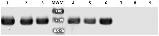 Genomic PCR of cells expressing the gfp - MBD or gfp - FABD2 constructs. Amplification of a 717 bp fragment using gfp specific primers and genomic DNA template from: S . kawagutii co-incubated with A . tumefaciens harboring fusions of gfp-MBD (lane 1), or gfp-FABD2 (lane 4); S . Mf11 co-incubated with A . tumefaciens harboring fusions of gfp-MBD (lane 2), or gfp-FABD2 (lane 5); and S . KB8 co-incubated with A . tumefaciens harboring fusions of gfp-MBD (lane 3), or gfp-FABD2 (lane 6). Genomic DNA from control S . kawagutii , S . Mf11, or S . KB8 cells did not amplify any PCR product (lanes 7, 8 and 9, respectively). MWM shows the molecular standards. The bands on the gel are shown in negative.