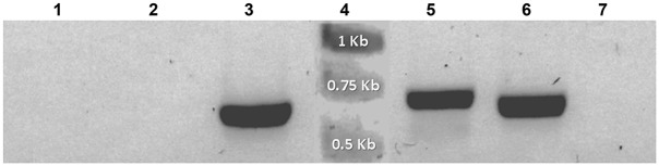 Amplified products from reverse-transcribed cDNA obtained from Symbiodinium kawagutii cultures co-incubated with Agrobacterium tumefaciens harboring pCB302- gfp-AtRACK1C , pCB302- gfp-MBD , and pCB302- gfp-FABD2 . The reverse-transcribed cDNA from S . kawagutii cultures expressing the gfp -fusion constructs was used as template with the gfp primers for PCR amplification of the corresponding transcripts (see Materials and Methods ). Fragments of ~0.7 kbp corresponding to the gfp transcripts were obtained from cDNA of S . kawagutii co-incubated with A . tumefaciens harboring: gfp-AtRACK1C (lane 3), gfp-MBD (lane 5), or gfp-FABD2 (lane 6). No amplifications were obtained when template cDNA was used from the following negative S . kawagutti controls: no shaking/no Agrobacterium (lane 1); shaking/no Agrobacterium (lane 2); or Agrobacterium /no shaking ( gfp-AtRACK1C ) (lane 7). The presence of cDNA in preparations from control and A . tumefaciens co-incubated cells was confirmed by RT-PCR of the endogenous S . kawagutii RACK1 transcript (data not shown). Lane 4 shows the molecular standards. The bands on the gel are shown in negative.