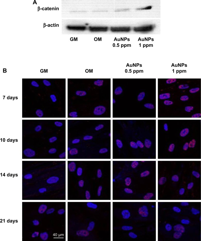 Activation of the osteogenic signaling pathway by chitosan-conjugated AuNPs. Notes: ( A ) A western blot analysis of the nonphosphorylated β-catenin protein expression after treatment with chitosan-conjugated AuNPs for 7 days. ( B ) Translocation of nonphosphorylated β-catenin into the nuclei of hADMSCs treated with chitosan-conjugated AuNPs for 7, 10, 14, and 21 days. Abbreviations: AuNPs, gold nanoparticles; GM, growth medium; hADMSCs, human adipose-derived mesenchymal stem cells; OM, osteogenic-inducing medium.