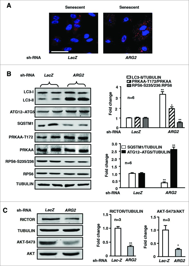Silencing ARG2 in senescent HUVECs augments autophagy and PRKAA signaling while inhibiting RICTOR expression and activation of AKT and RPS6KB1. The senescent HUVECs were transduced either with rAd/U6- LacZ shRNA as control or rAd/U6- ARG2 shRNA . Eighty-8 h (serum-free during the last 16 h) post transduction, cells were subjected to ( A ) immunostaining of LC3-I/-II (red) followed by DAPI staining (blue). Shown are representative merged images from 6 independent experiments. Scale bar = 0.1 mm. (( B )and C ) Immunoblotting analysis LC3-I/-II, ATG12–ATG5, SQSTM1, PRKAA-T172, and total PRKAA, RPS6-S235/236 and total RPS6. RICTOR and tubulin, AKT-S473 and total AKT. Quantification of the immunoblotting signals is shown in the bar graphs in the right panels (n = 3 to 6 as indicated in the figures). * P